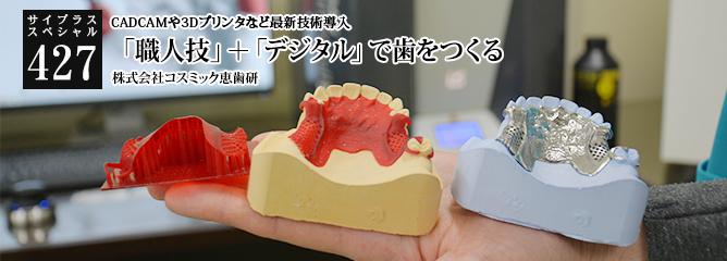 [サイプラススペシャル]427 「職人技」+「デジタル」で歯をつくる CADCAMや3Dプリンタなど最新技術導入